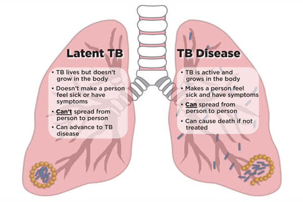 latent tb and tb disease