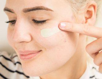 How Do I Reduce The Redness Of Acne Scars