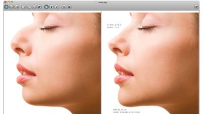 A screenshot from the app store of a plastic surgery simulating / photo editing app. It shows a before and after. In the after photo, a woman's nose and chin have been augmented.