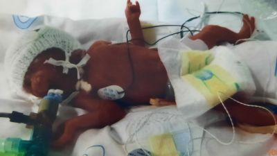 Amara Clemence born at just 25 weeks