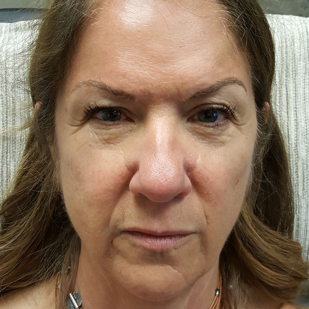 Before And After   Denver Botox, Dysport, Restylane