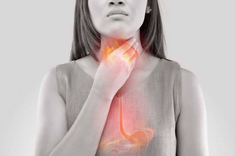 Reflux – symptoms, cause and treatment
