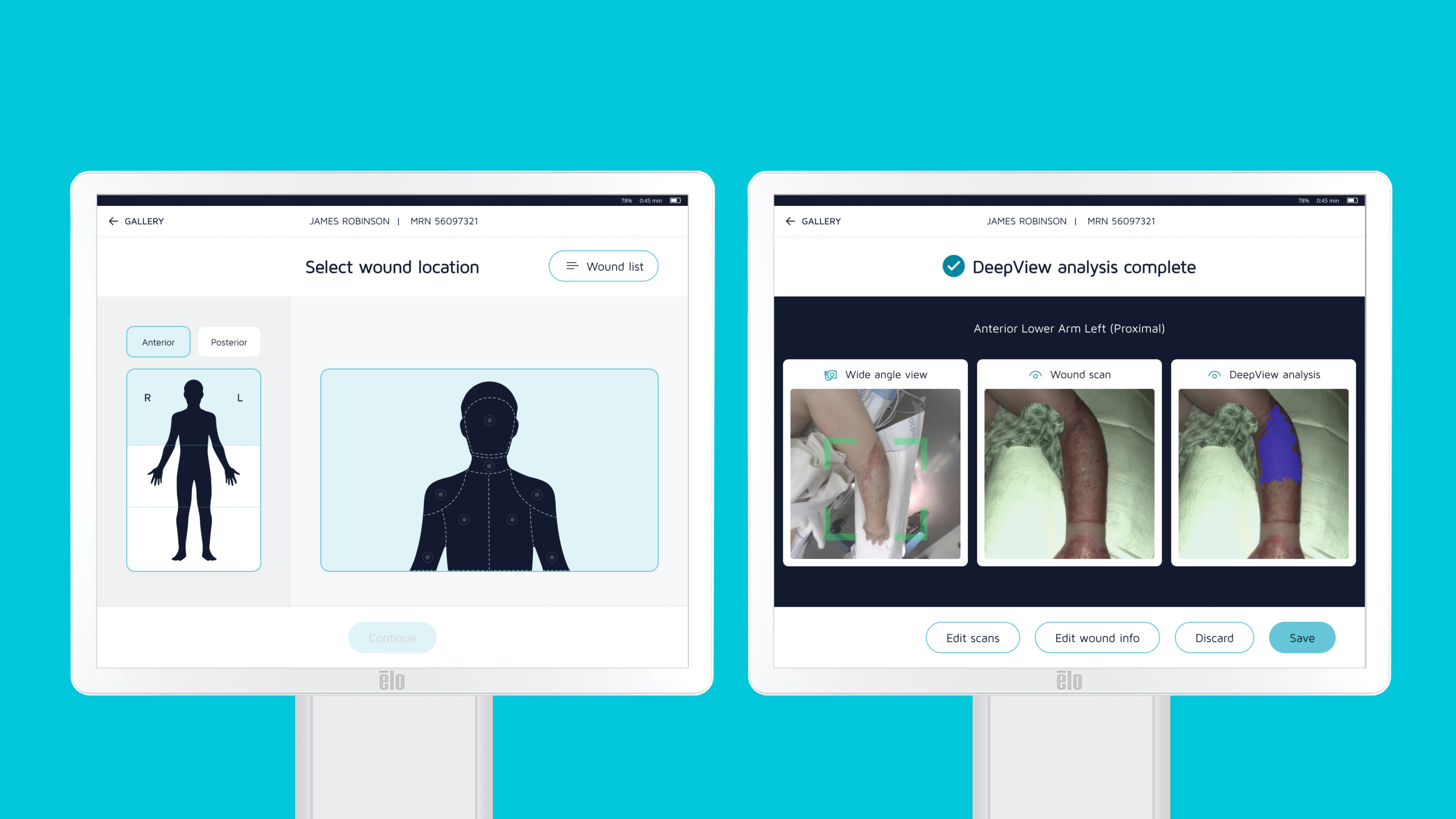 DeepView Product screens: select wound location and wound analysis