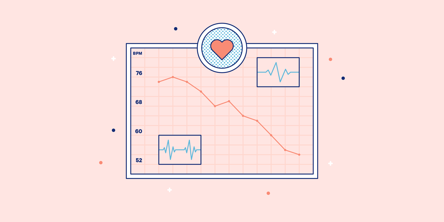 A chart displaying a heart rate lowering over time. Illustration.