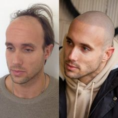 before-and-after-man-with-scalp-micropigmentation