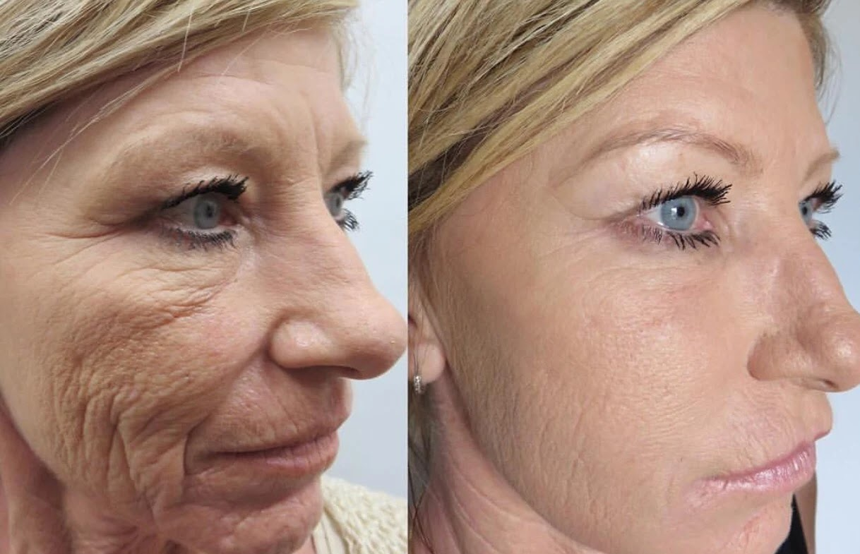 microneedling-benefits-before-after-phoenix