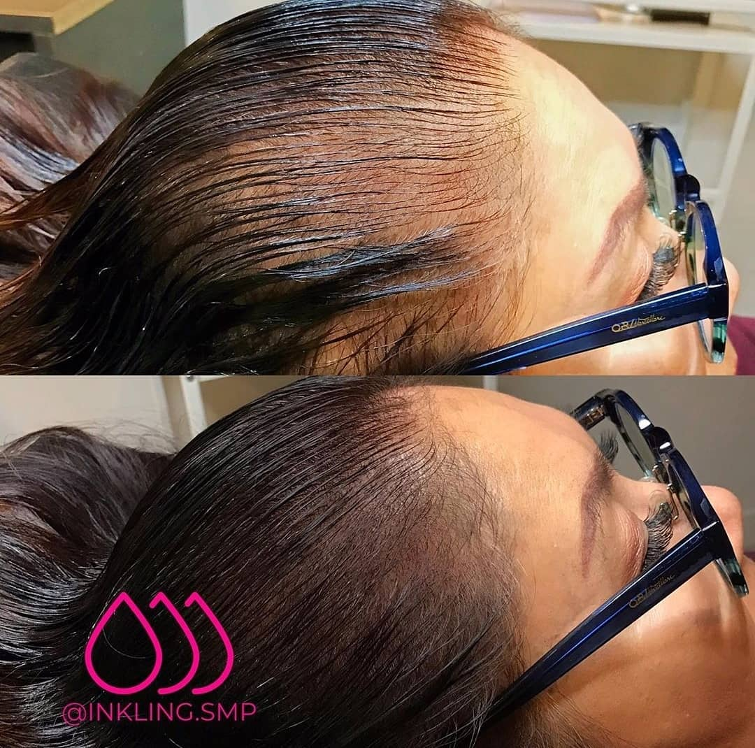 before-and-after-women-with-scalp-micropigmentation