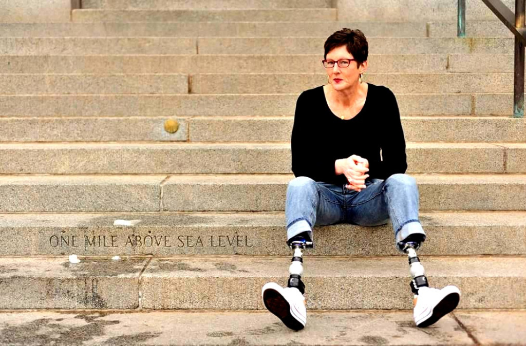Why Losing My Legs Didn't Ruin My Day — Kristin Hopkins's Spartan Revolution