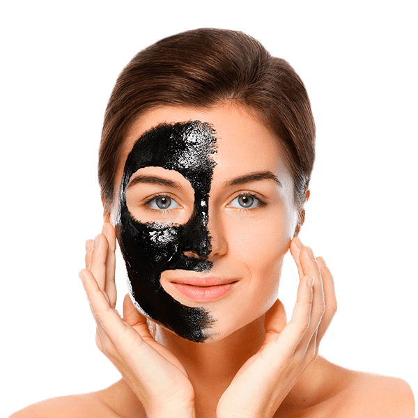 Carbon Laser Facial Treatment in NYC