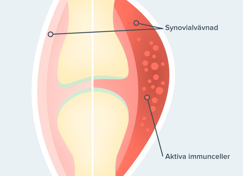 autoimmun-knaled