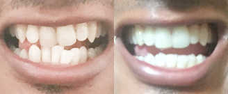 Before/after treatment. What's corrected: Addressed dental cant and equilibrated molar relationship
