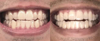 Before/after treatment. Eliminated flat smile appearance and fixed crossbite