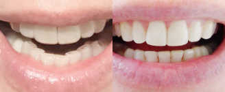 Before/after treatment. What's corrected: Corrected cross bite and deep bite with implants present