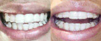Before/after treatment. What's corrected: Closed space from missing tooth and improved bite relationship
