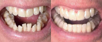 Before/after treatment. What's corrected: Drastically improved cross bite and alleviated patient's jaw discomfort