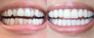 Before/after treatment. What's corrected: Improved bite functionality and realigned smile