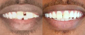 Before/after treatment. What's corrected: Closed gap of missing tooth and realigned teeth