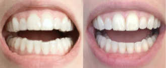 Before/after treatment. What's corrected: Achieved symmetrical lower arch alignment without interfering with bite