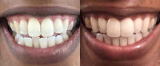 Before/after treatment. What's corrected: Resolved crowding and achieved an ideal bite