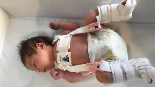 Hip dysplasia in babies: Signs to look out for and treatment