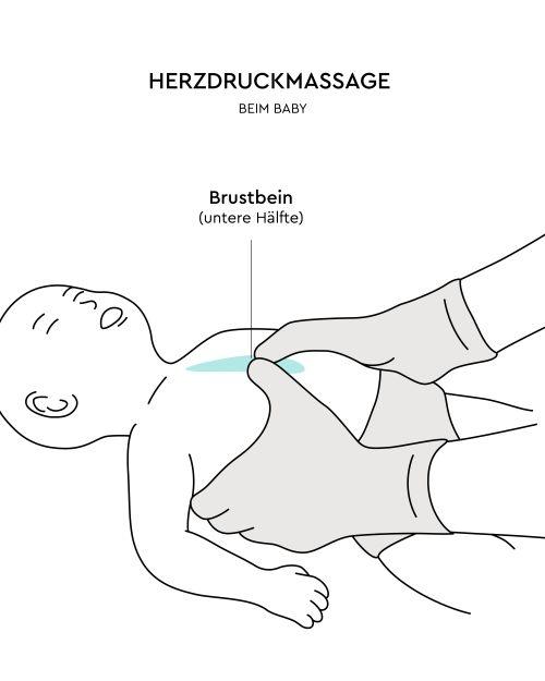 Herzdruckmassage beim Baby