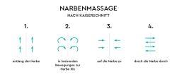 Narbenmassage nach Kaiserschnitt