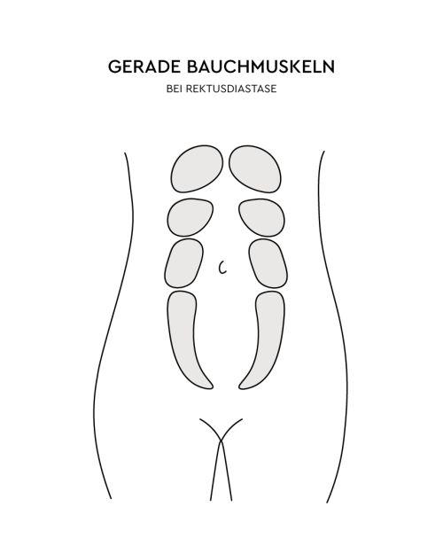 Gerade Bauchmuskeln bei einer Rektusdiastase LILLYDOO Grafik