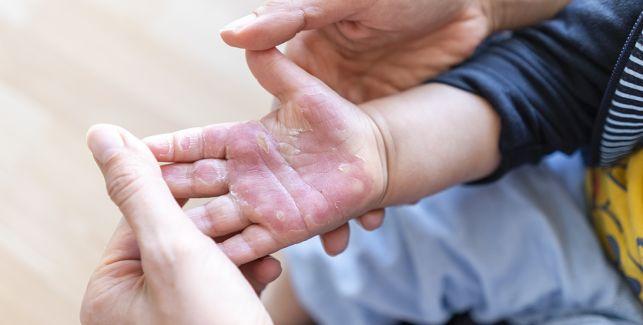 Erwachsene Person hält verbrannte Kinderhand in den eigenen Händen, um sie zu verarzten.