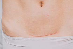 Soins de la cicatrice post-césarienne
