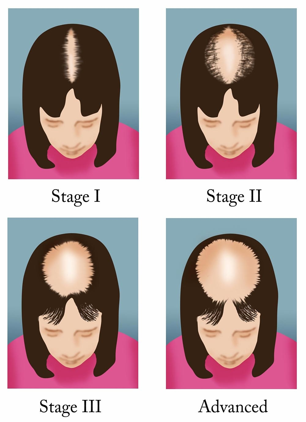 illustration-of-female-pattern-baldness