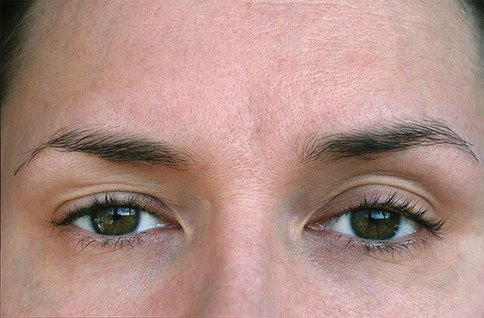 المقربة من عيون المرأة مع تدلي الجفن تدلي