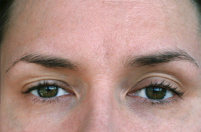 closeup of woman's eyes with ptosis eyelid drooping
