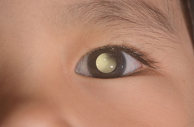 Photos may help detect eye diseases in your children