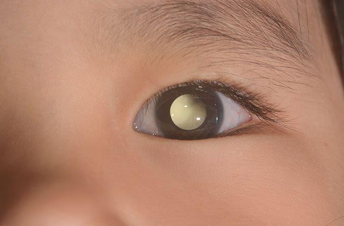 child with retinoblastoma