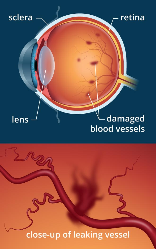Diabetic Retinopathy Diabetic Macular Edema Symptoms