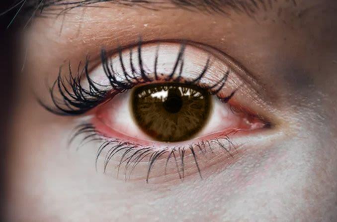 امرأة تعاني من آثار التهاب الملتحمة