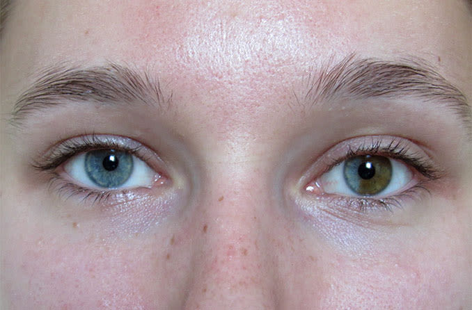 closeup of sectoral or segmental heterochromia eyes