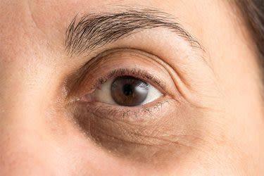 Cómo Desinflamar Los Ojos Hinchados Y Eliminar Ojeras All About Vision