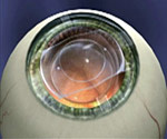 The Visian ICL (Implantable Collamer Lens).