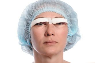 Woman recovering from cosmetic eye surgery
