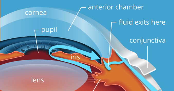 3 Main Causes Of Glaucoma