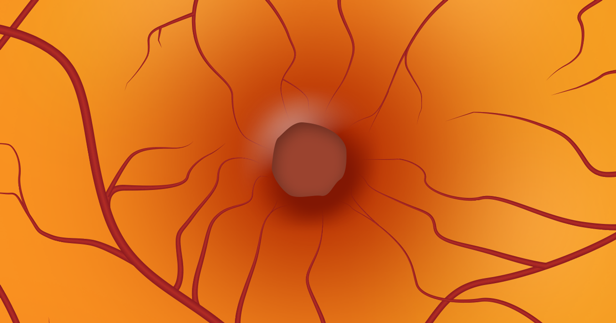 Macular Holes: Causes, Progression, and Surgery
