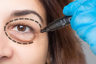 What is eyelid surgery?