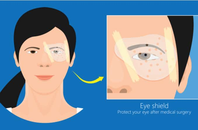 Eye shield used during recovery from detached retina surgery