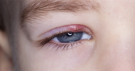 young boy with stye