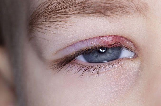Ragazzo con un orzaiolo nell'occhio