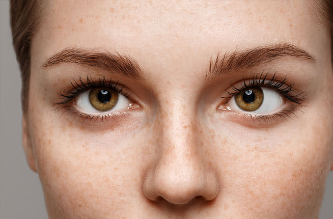 Woman suffering from strabismus