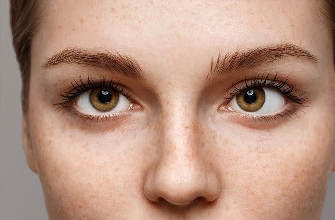 mujer con esotropía (ojo izquierdo)