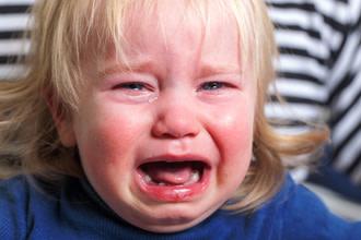 Hinchado alergia ocular por niño