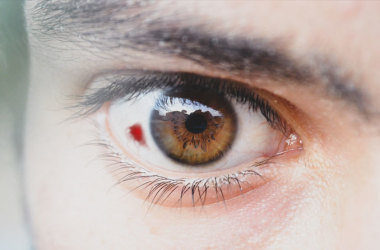 man with eye hemorrhage (blood in eye)